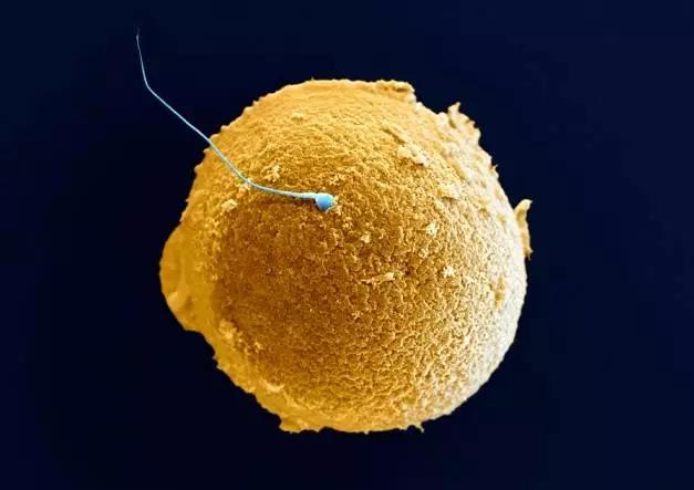 人类生殖细胞